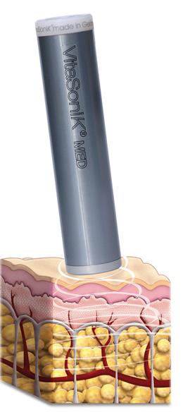 Funktionsweise VitaSoni<i>K</i>® med in der Haut