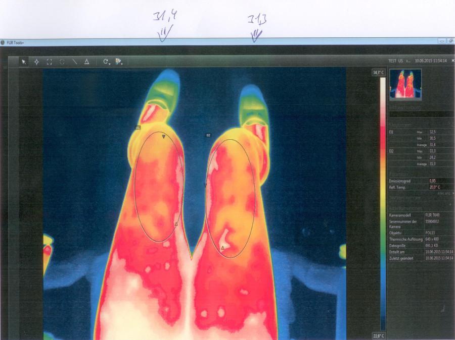 Oberschenkel Wärmebildaufnahme vor der VitaSoni<i>K</i>® Behandlung