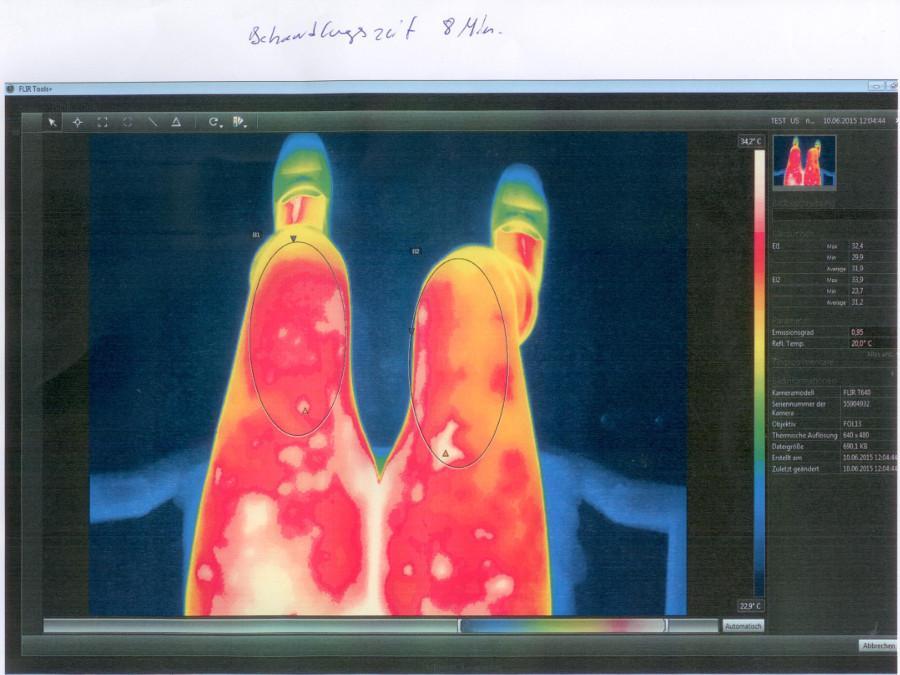 Wärmebildaufnahme nach der VitaSoni<i>K</i>® Behandlung